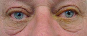 Eyelid Surgery: Blepharoplasty / Blepharoptosis - City Eye